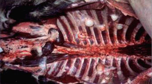 Tuberculose - Hert