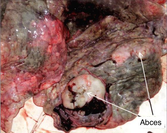 Tuberculose - Longen Hert
